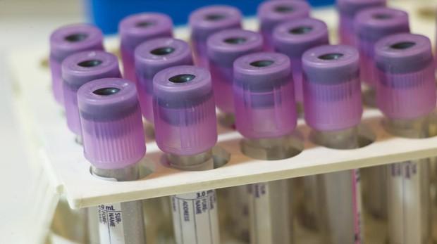 El alzhéimer podría detectarse 20 años antes de los primeros síntomas
