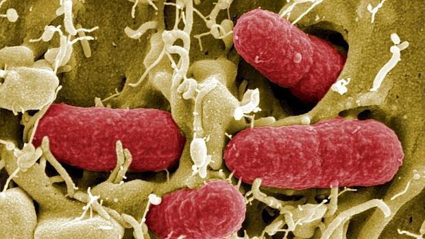 Imagen microscópica de la bacteria E. coli, una de las mayores causantes de intoxicaciones alimentarias
