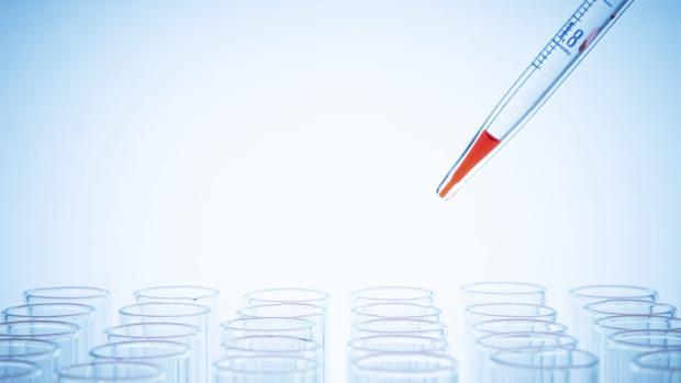 La biopsia líquida podría sustituir a la tradicional que obiga a abrir para extraer tejido para analizarlo